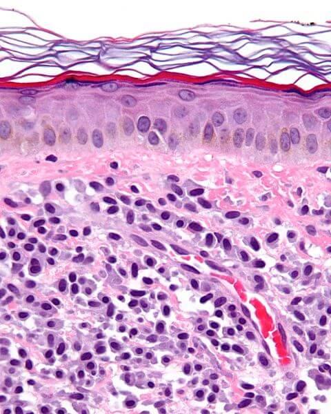 "Mastozytose (Foto: {a href=""http://commons.wikimedia.org/wiki/User:Nephron""}Nephron{/a})"